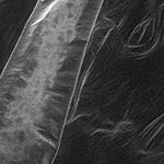 Plant leaf with trichome, ESEM