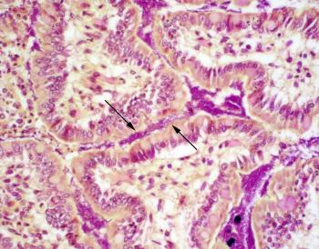 Figure 1. The small intestine villi are coated by a thick layer of Gram-negative bacilli (arrows).