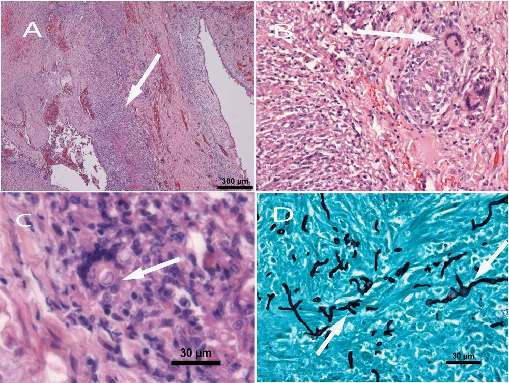 Disseminated mycosis in a German Shepherd dog.