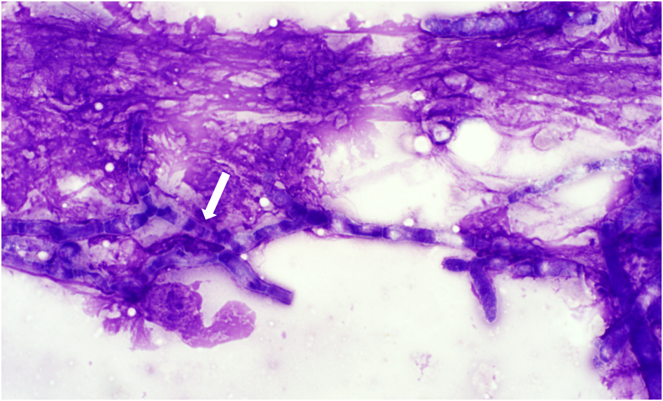 Figure 1.  A cluster of septate, branching fungal hyphae (an arrow) embedded within lytic cellular debris. (Wright's stain)  Image courtesy of Katherine Morrison.