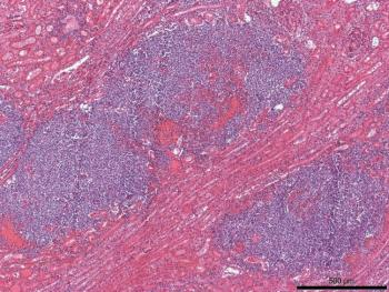Figure 2. Kidney, histologic section. Nodules identified on gross exam correspond to multiple aggregates of neutrophils mixed with hemorrhage, fibrin, and bacteria. Hematoxylin and eosin stain