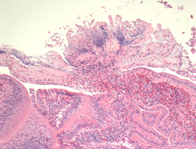 Histology of FDN.  Focal necrosis of villus tips with luminal effusion of proteinaceous fluid and heterophils accompanied by large numbers of slender filamentous bacteria.