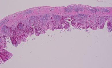 mall intestine annular bands showing mucosal hemorrhage and lymphoid necrosis. H&E.