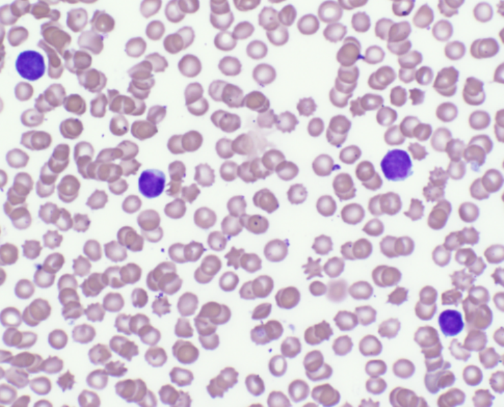 Air-dried, well-stained blood smear.