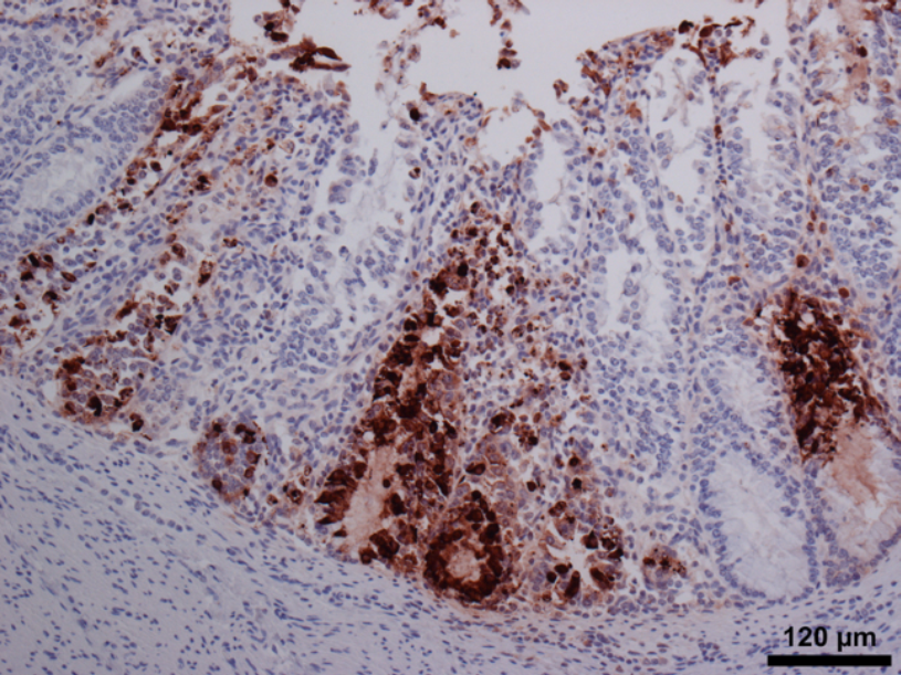 Strong positive IHC staining for bovine coronavirus antigen in colon from a calf that was BCV PCR negative, showing the value of using more than one test for diagnostic evaluation.