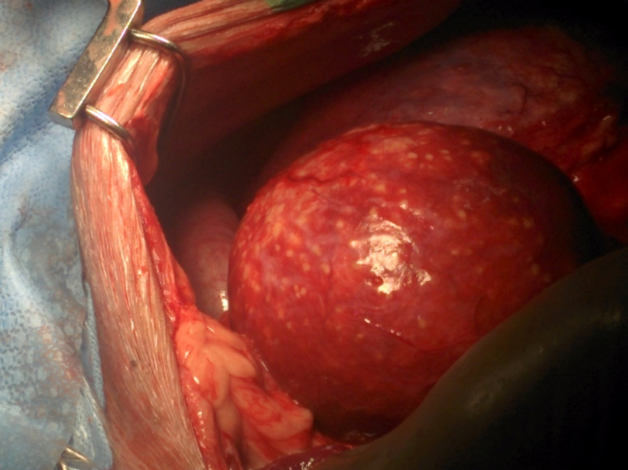 Intraoperative photograph of liver masses with characteristic military pale surface nodules (Dr. Tom Gibson, Ontario Veterinary College, with permission).
