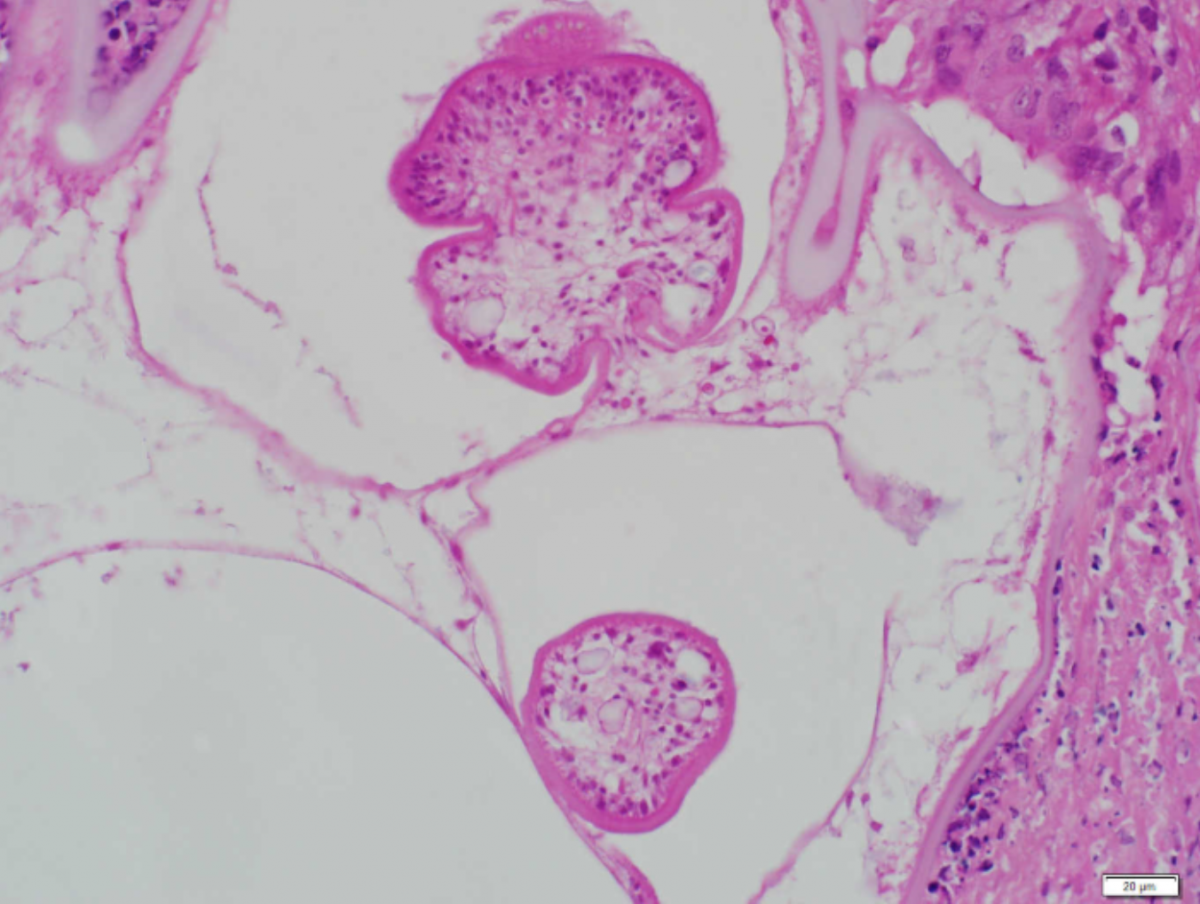 Histology from the wall of one of the resected masses, with two protoscolices from encysted tapeworms (H&E, 400x magnification).