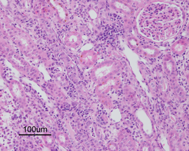 Lymphoplasmacytic, histiocytic and suppurative tubulointerstitial nephritis in a dog (H&E).