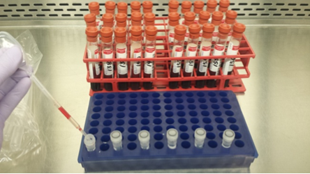 Example of splitting serum samples, and racks