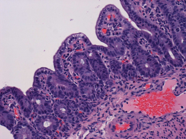 Marked atrophy and fusion of intestinal villi in piglet with PED.