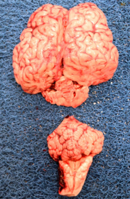 Brain removal in rostral and caudal sections. These may be sagittally sectioned, with half of each section fixed in formalin for histopathology, and the remaining halves stored fresh or frozen for  microbiologic tests