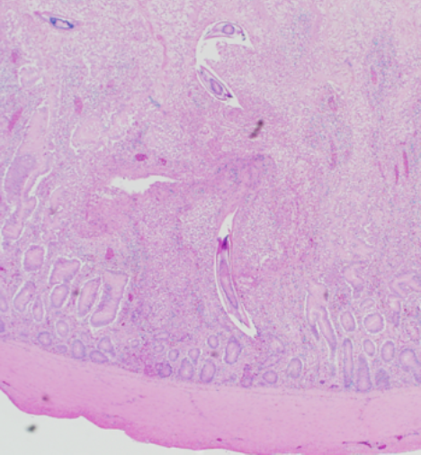 Focus of small intestinal mucosal necrosis and inflammation containing colonies of bacteria resembling Clostridium perfringens and multiple ascarid larvae. 40X H & E