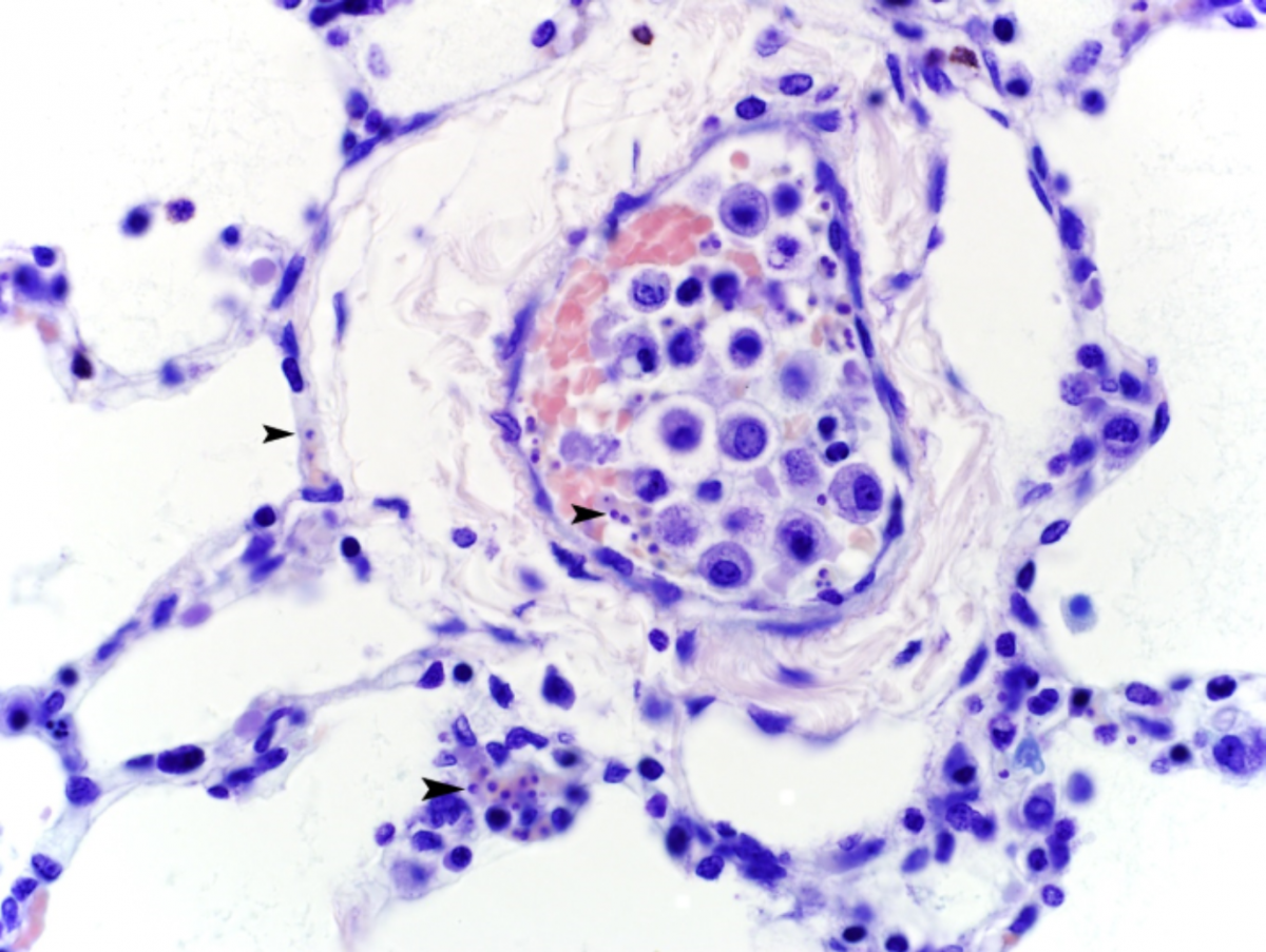 Figure 1. Lung, 600x magnification, Giemsa stain. Hypochromatic erythrocytes in blood vessels contain Giemsa-positive, roughly round, 1-2 µm diameter Babesia organisms, often in pairs (arrowheads).
