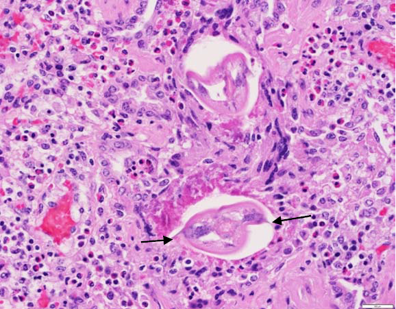 Figure 1. Lung section showing eosinophilic inflammation and cross section of parasites. Note lateral alae (arrows).