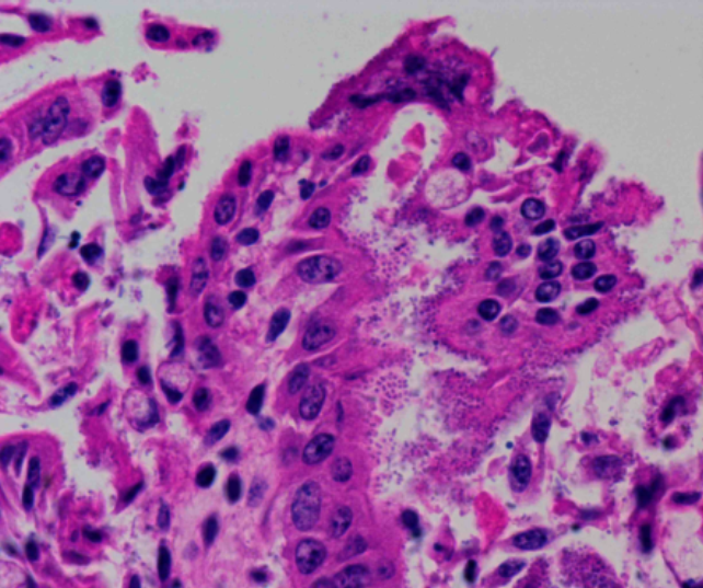 VTEC attached to surface enterocytes of the small intestine (from case 4).