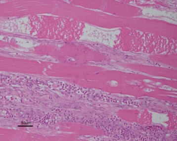 Histologic section of breast muscle showing polyphasic myodegeneration and interstitial fibrosis consistent with wooden breast (20X).