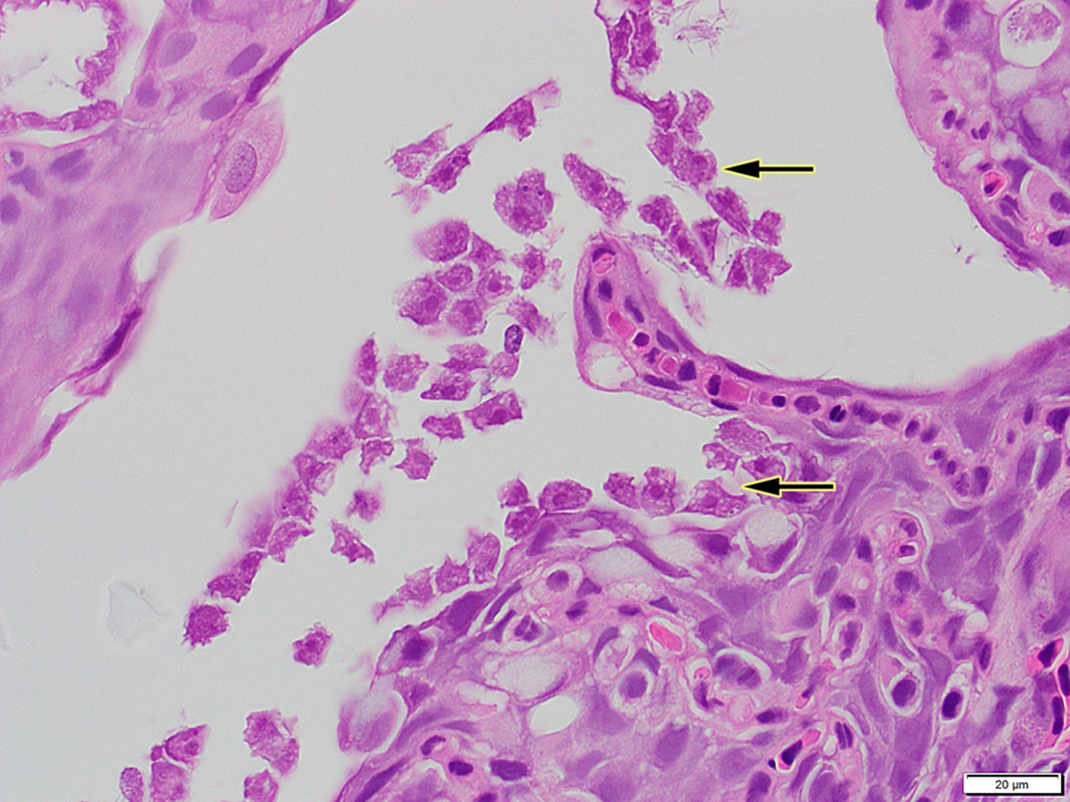Figure 4. Histology of gills with amoebic trophozoites (arrows).