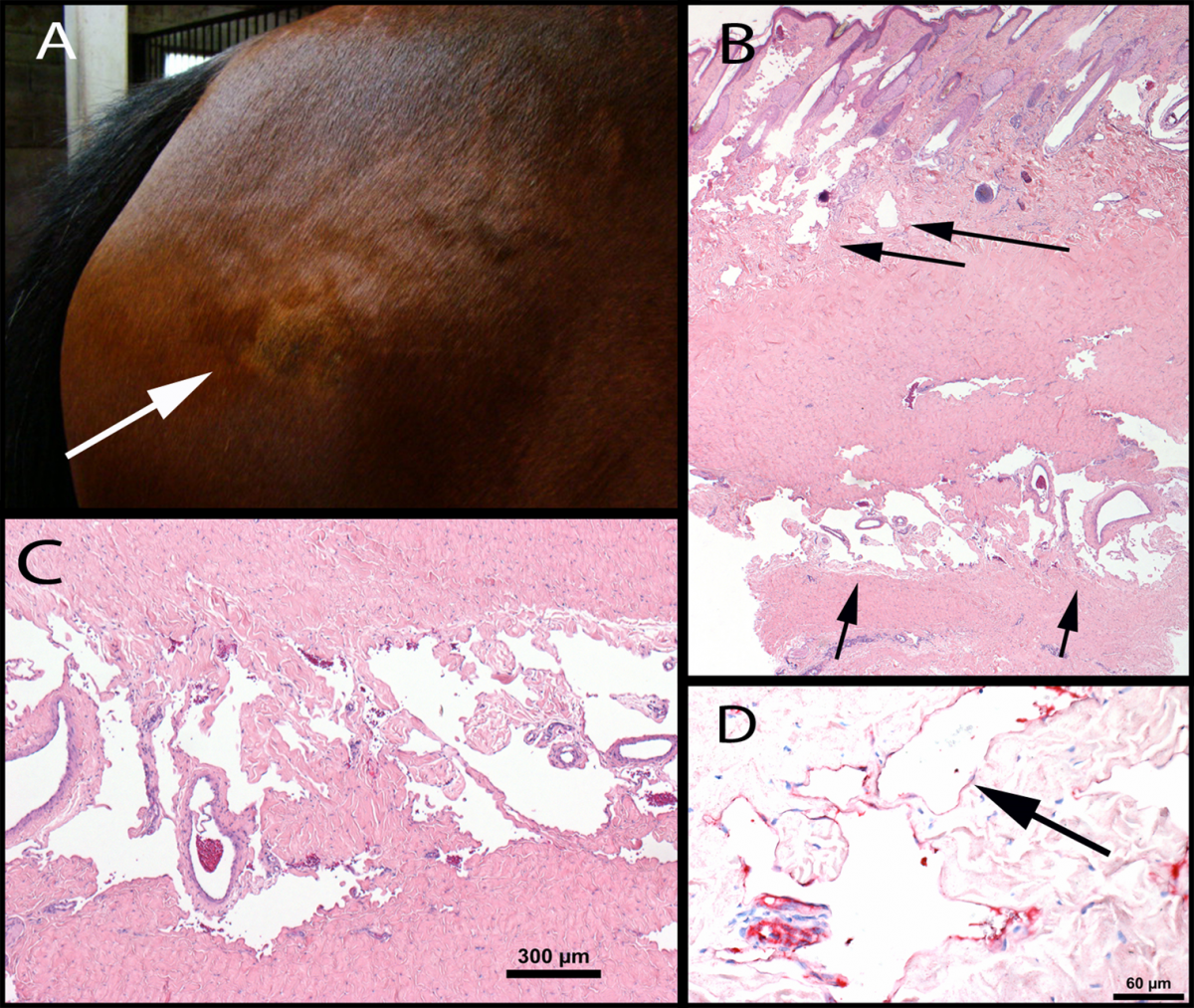 A. Gross photograph of the lesion – lumpy area on the hip region (arrow). B. Full-thickness biopsy showing vessels in the superficial and deep areas of the vessel (arrows). C. Close view of vessels in the deep layers of the biopsy. D. Factor VIII IHC stain shows red staining of cells lining the vessels compatible with vascular or lymphatic endothelium.