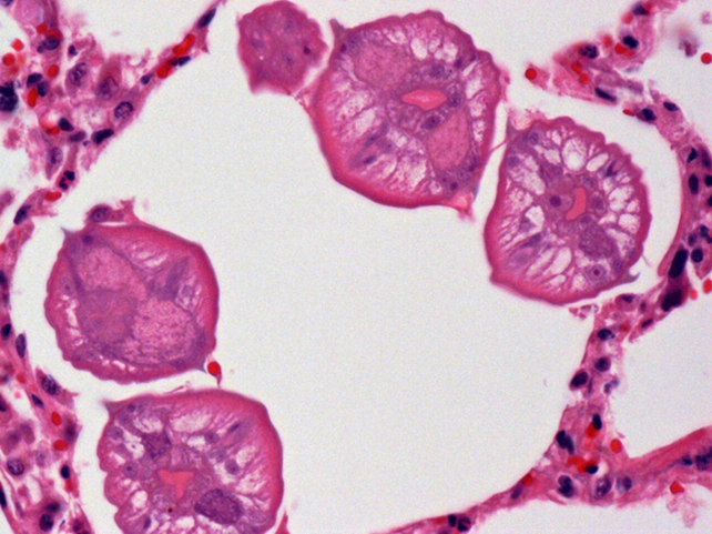 Several ascarid larvae in cross-section within a pulmonary alveolus.