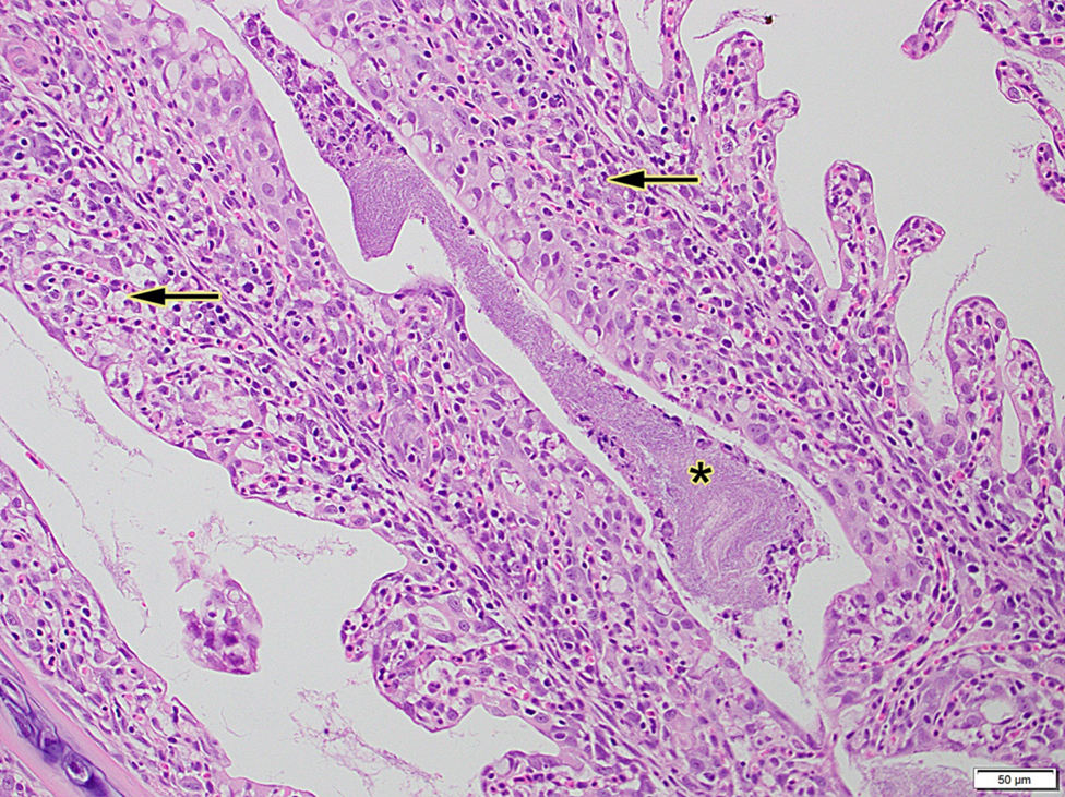 Figure 2. Histology of gills with widespread lamellar epithelial hyperplasia with fusion (arrow) and dense filamentous bacteria (asterisks).