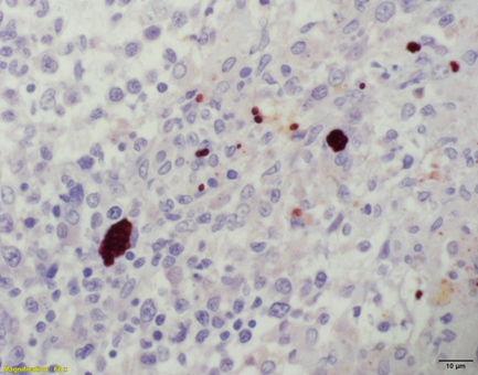 Figure 2. Spleen. Positive immunostaining of Toxoplasma gondii cysts and tachyzoites in the spleen. 600X