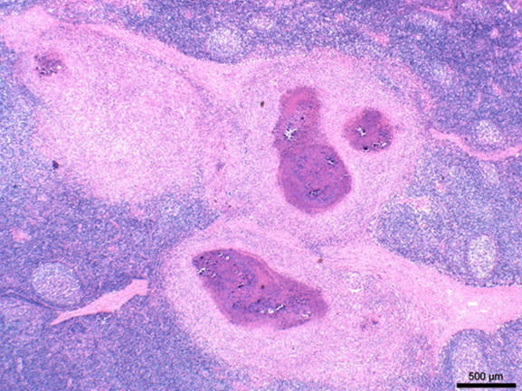 Mandibular lymph node, market hog. Normal node architecture is replaced and effaced by caseous granulomas. H&E stain, 200x.