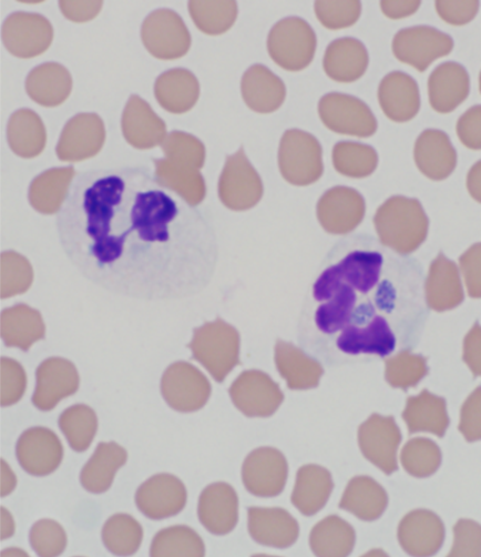 Two A. phagocytophilum morulae in a neutrophil.
