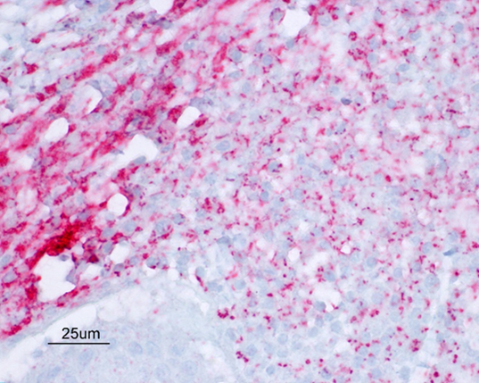 Positive IHC staining for Helicobacter spp. in ovine placenta.