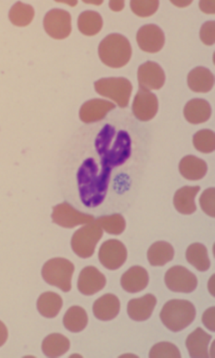A. phagocytophilum morula in a neutrophil.