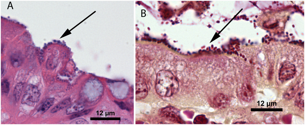 Figure 1A plump bacilli and 1B Gram stain