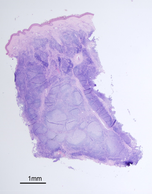 Figure 2. Histology of skin lesion.