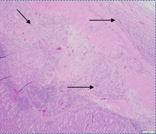 Histologic section through stenotic jejunal segment, arrows showing tumor infiltrates (mucosa at bottom of photo).