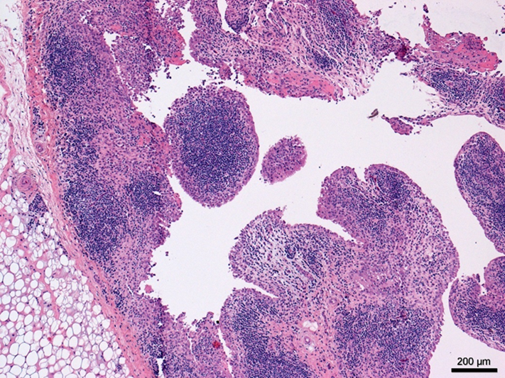 Marked proliferation of stifle synovium with extensive lymphoplasmacytic infiltrates.