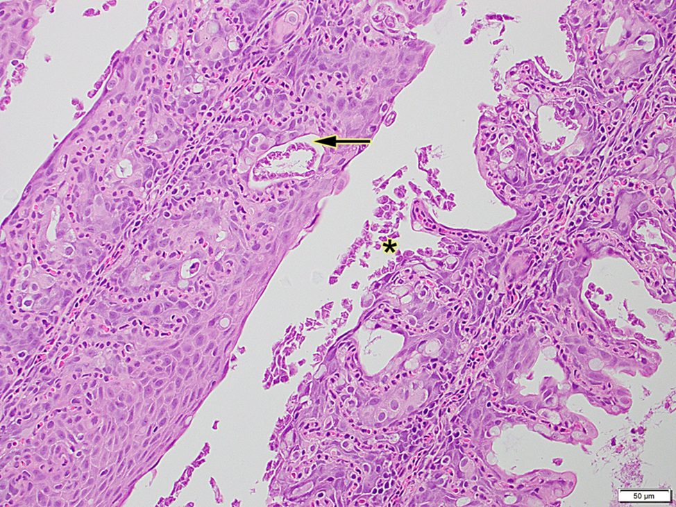 Figure 3. Histology of gills with widespread lamellar epithelial hyperplasia, fusion, and pocket formation (arrow) with interspersed amoebic trophozoites (asterisks).