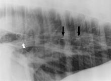 Xray image showing a dual pressure sensor catheter in the pulmonary artery of a horse.